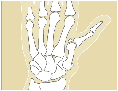 Basal Joint Arthritis