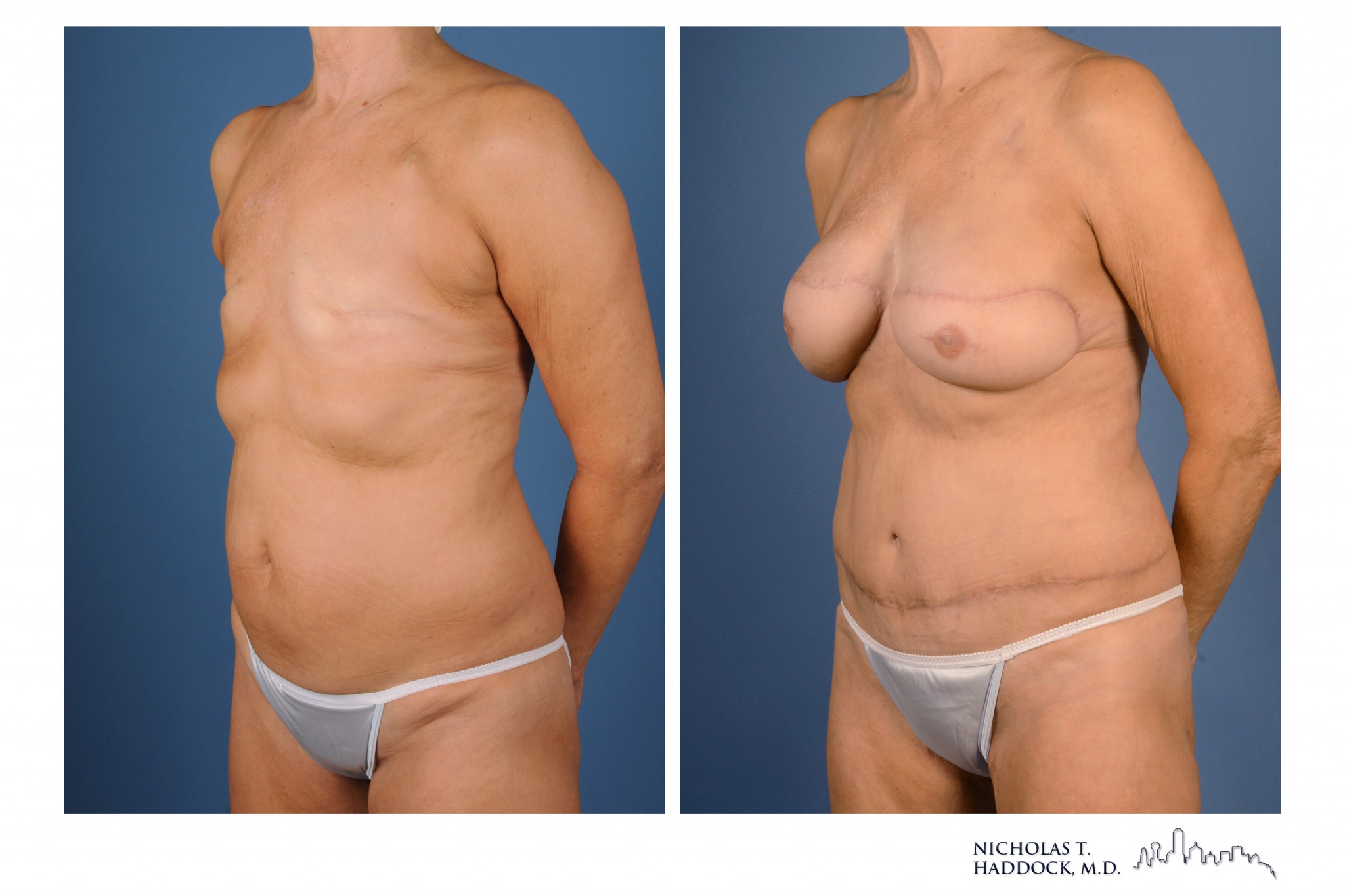 Flap breast reconstruction are