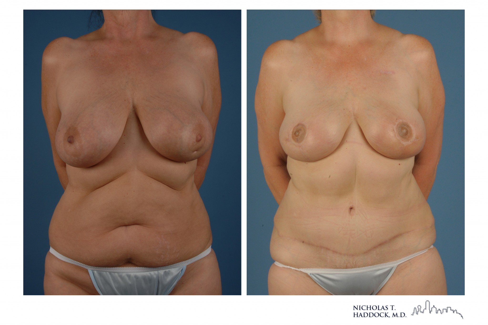 Breast Reconstruction Before & After Pictures - RealSelf