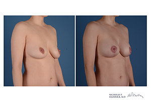 Breast Augmentation Mastopexy