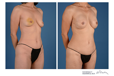 PAP Flap Before and After
