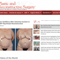 New Belly Button Procedure