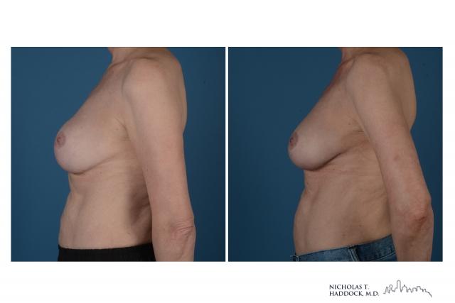Breast Augmentation Revision