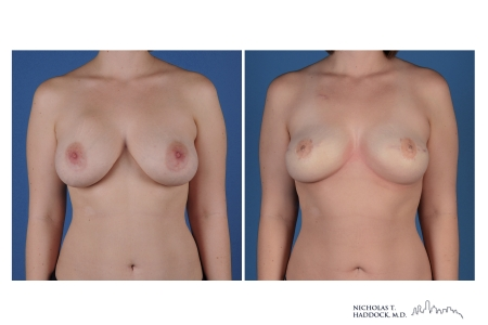 Breast Reconstruction with PAP Flap Before and After
