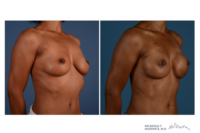 breast implant reconstruction