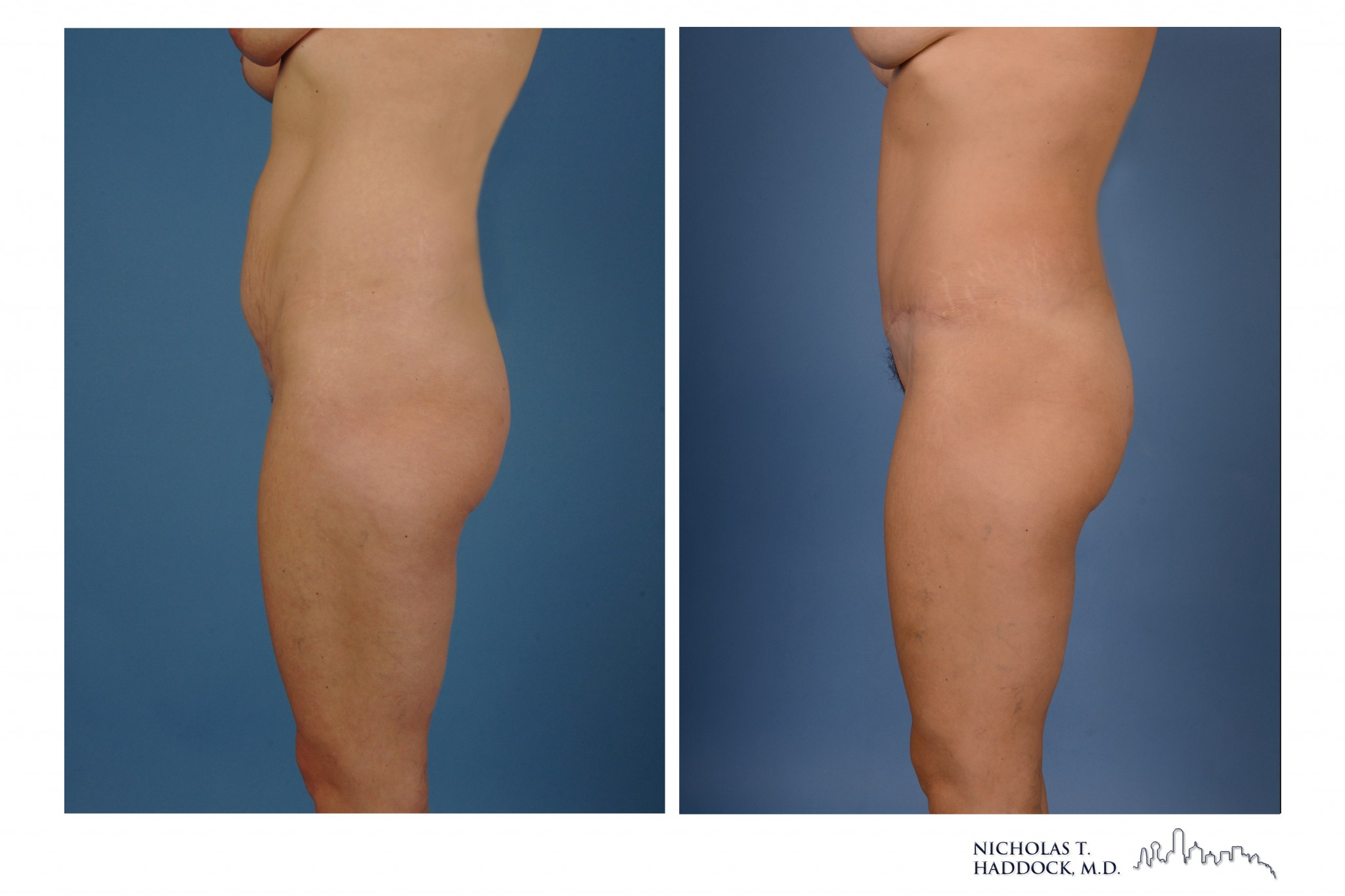 Dallas Abdominoplasty