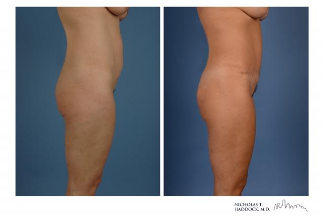 Dallas Abdominoplasty