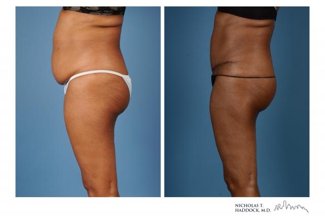 Dallas Abdominoplasty Photo