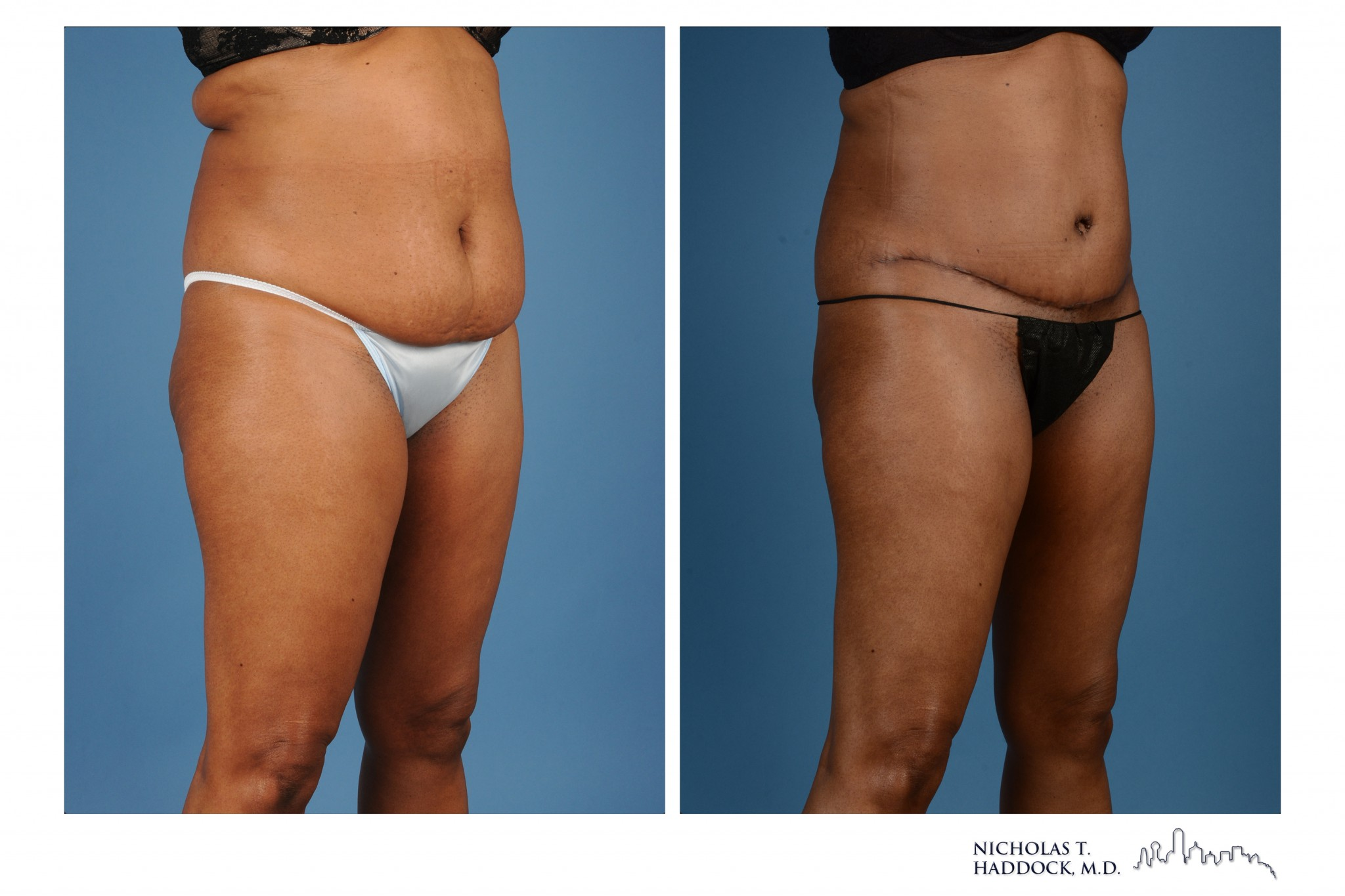 Dallas Abdominoplasty Photo