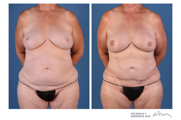 DIEP flap, breast reconstruction, breast surgery, before and after, microsurgery