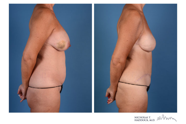 diep flap, breast reconstruction, breast surgery, flap, microsurgery