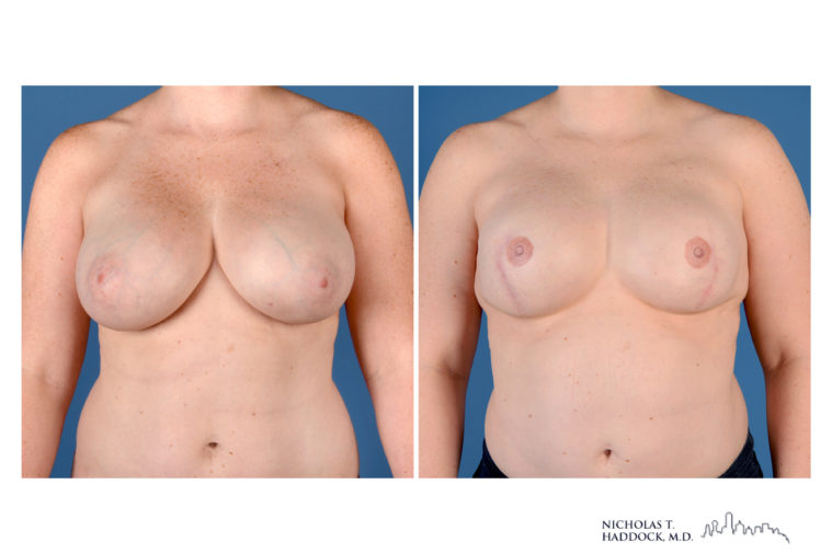 Implant Breast Reconstruction (nipple tattoo only)