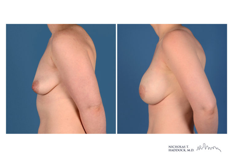 implant, breast implant, brca, nipple sparing mastectomy, breast reconstruction, before and after