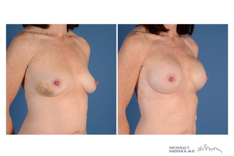 Implant Breast Reconstruction